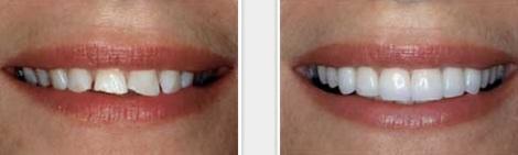 fotos antes y despues diente fracturado reconstruccion corona