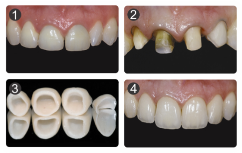 odontologia moderna medellin, ultimo en odontologia restaurar dientes
