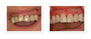 coronas dentales porcelana medellin
