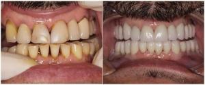 protesis dental caso  antes despues, coronas dentales porcelana casos antes despues, reconstruccion dental antes despues