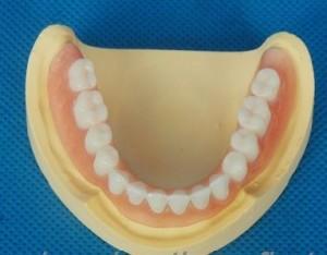 protesis dentales opciones protesis, mejor protesis dental alternativas, protesis total completa adulto