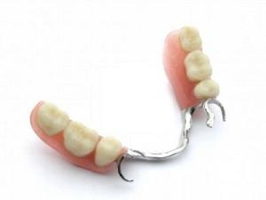 protesis dentales opciones protesis, mejor protesis dental alternativas