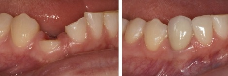 diente fracturado foto antes despues reconstruccion dental
