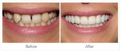 odontología Estética coronas dentales Fotos antes y después