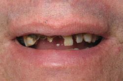 corona dental antes despues