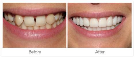 fotos diseño de sonrisa coronas dentales porcelana antes y despues
