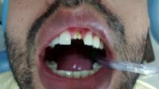 Corona dental Zirconio