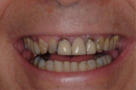 cambio extremo odontologia medellin caso antes despues