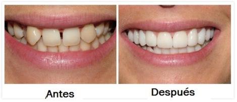 casos antes y despues odontologia estetica diseño de sonrisa coronas porcelana medellin