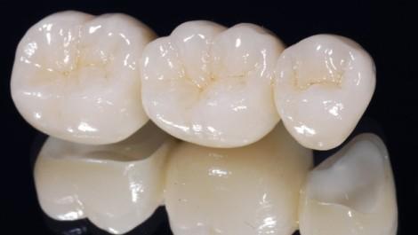 coronas dentales en porcelana carillas medellin