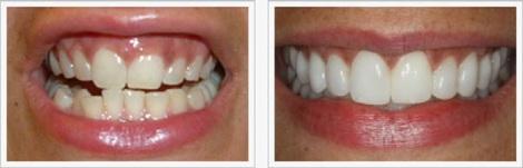 casos odontologia estetica antes y despues, odontologia estetica medellin caso