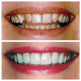 odontologia estetica medellin casos