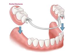 Puente dental removible prótesis  medellin