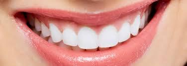 Blanqueamiento dental Medellin