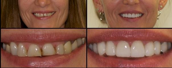 diseño de sonrisa Medellin odontologo