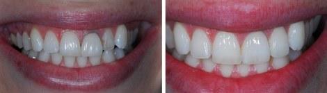 Corona dental zirconio Medellin corona porcelana