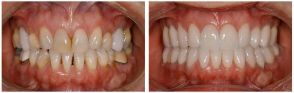 Coronas dentales Zirconio antes y despues