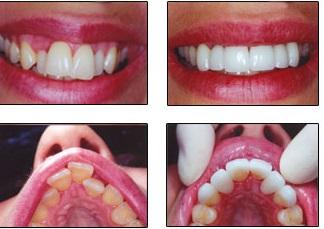 Enderezar dientes torcidos antes después Medellin