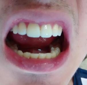 Carillas dentales estéticas después