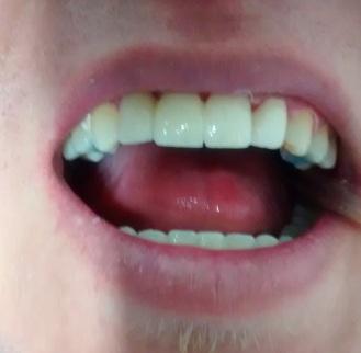 Carillas dentales esteticas antes y después