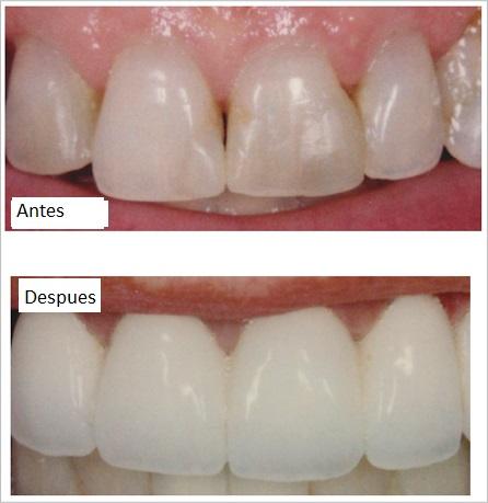 Coronas dentales zirconio Medellin antes y después