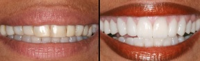 Corona dental zirconio estetica dental