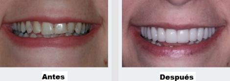 Diseño de sonrisa odontología antes despues Estetica Medellin