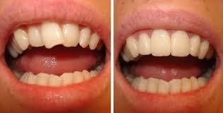 Como enderezar los dientes torcidos sin ortodoncia y for W de porter ortodoncia