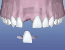 puente dental economico