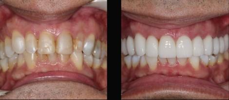 Coronas dentales circonio porcelana antes despues- Medellin Colombia