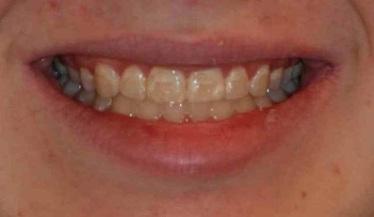 Diseno-de-sonrisa-medellin-carillas-porcelana-antes-despues