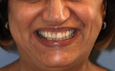 Diseño-de-sonrisa-medellin-carillas-porcelana-caso-antes-despues