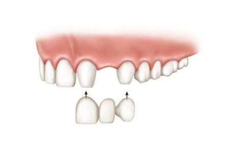 Puente-dental-porcelana-tipos