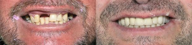 puente-dental-fijo-porcelana-medellin-antes-despues