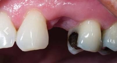 puente-dental-fijo-zirconio