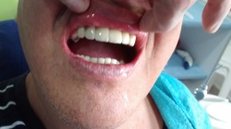 Puente dental zirconio antes después