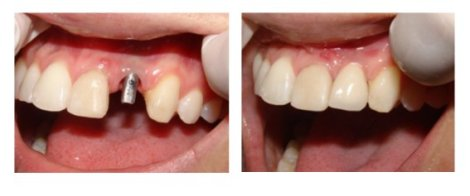 Implante-dental-caso-antes-despues