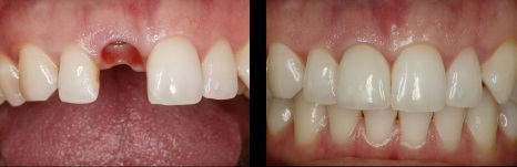 Implante-dental-caso-Medellin-Colombia