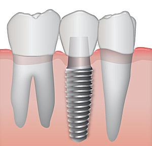 implante-dental-como-es