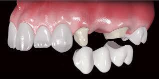 Prótesis dental Prótesis Fija y Prótesis Removible
