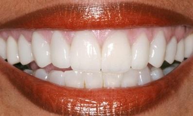 Estética dental odontología estética Medellín