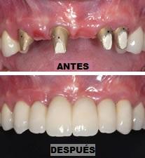 Puente dental zirconio antes después Medellín Colombia
